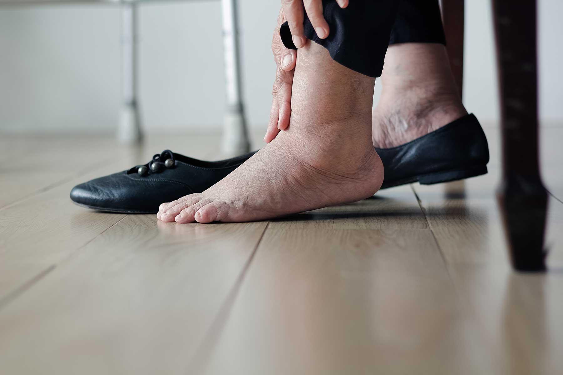 Diabetic Foot Care at the Farnham Foot Clinic