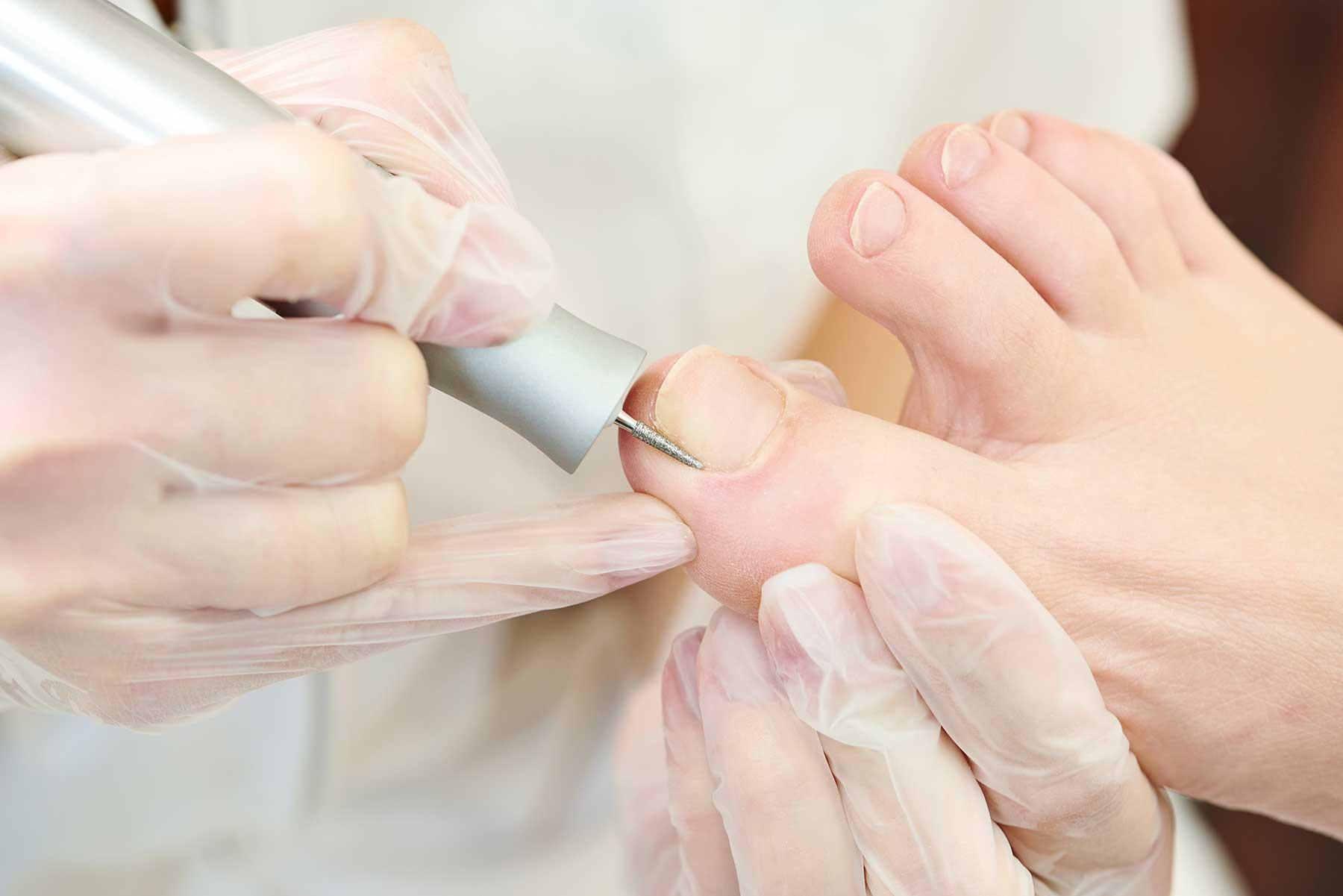 Toe Nail Surgery in Farnham Foot Clinic Surrey