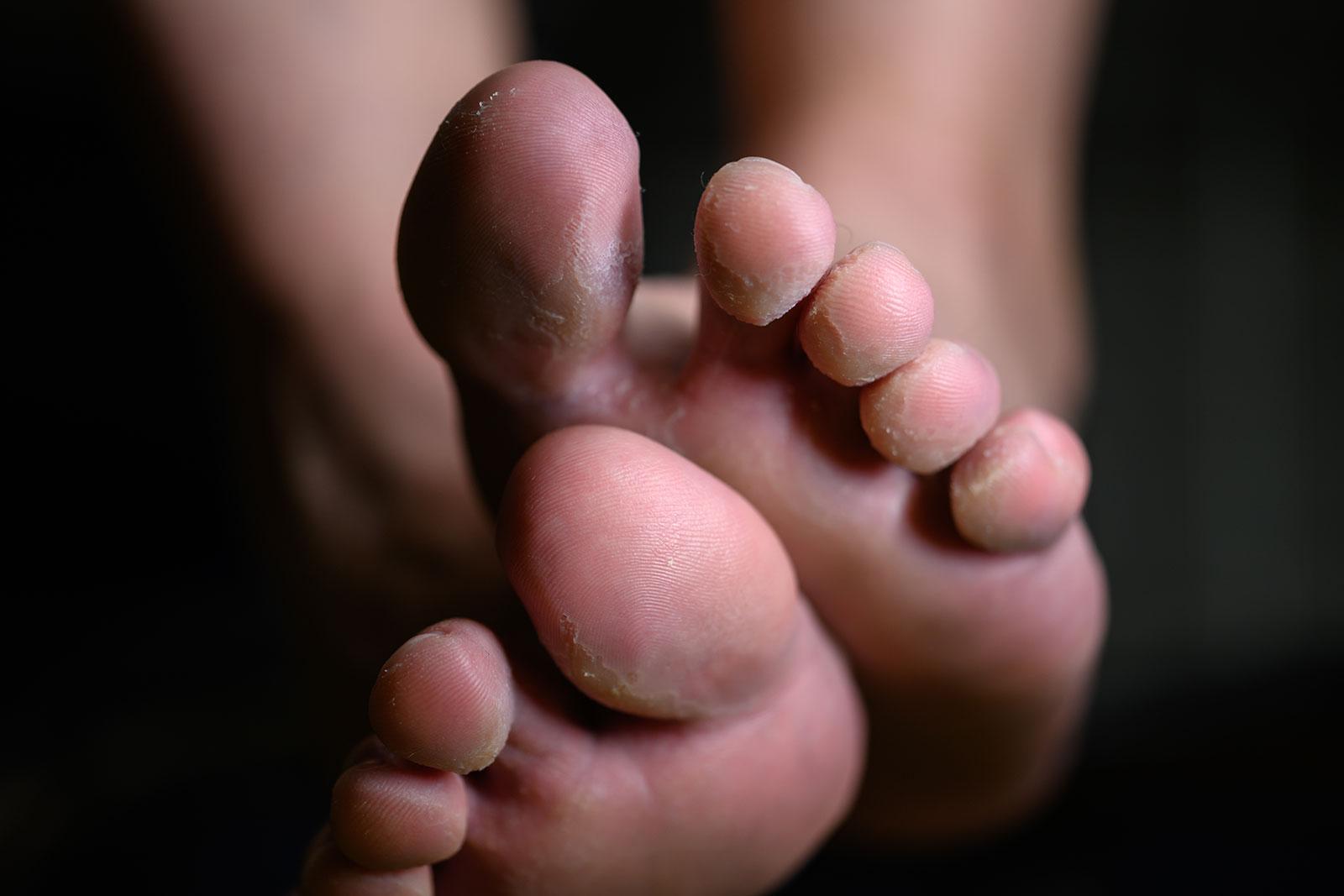 Fungal skin condition - Farnham Foot Clinic Surrey