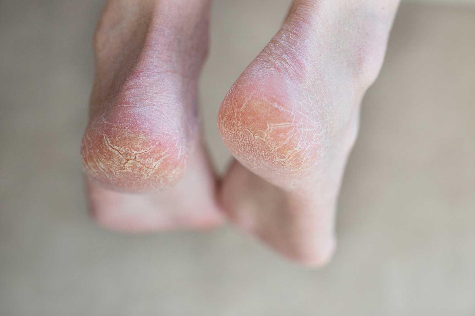 Hard Skin, Corns and Calluses