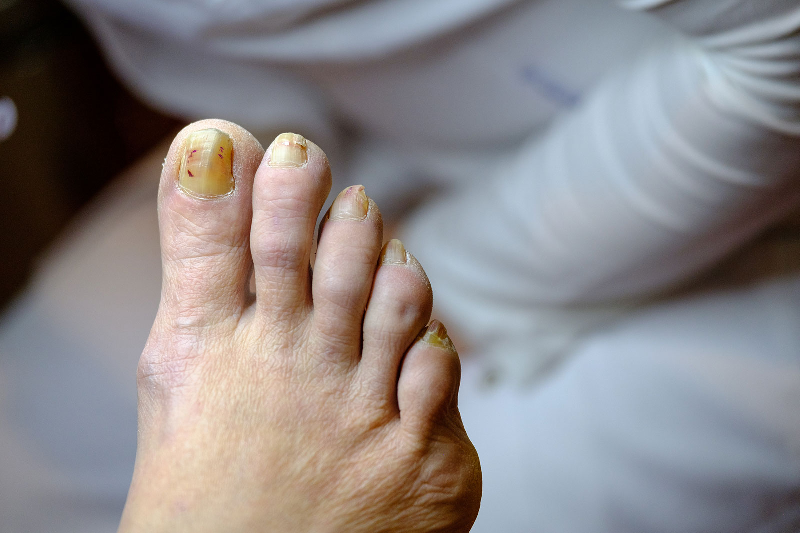 Thickened Nails - Fungal Infection and Treatment Surrey
