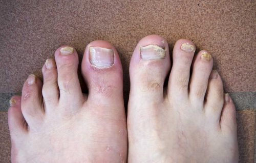 Treats severe fungal nail infections quickly and effectively.